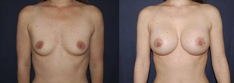 30 Breast Augmentation Patient Before and After