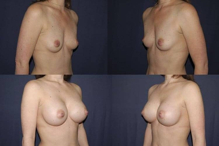 Breast Augmentation Patient Before and After 29