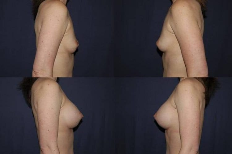 Breast Augmentation Patient Before and After 28