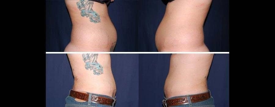 71 Liposuction Before and After Photo