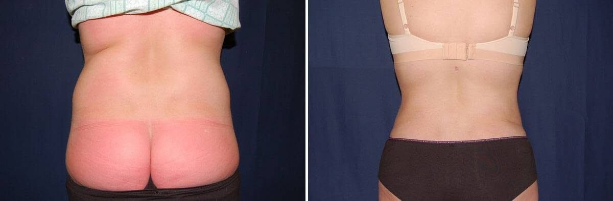 78 Liposuction pictures before and after