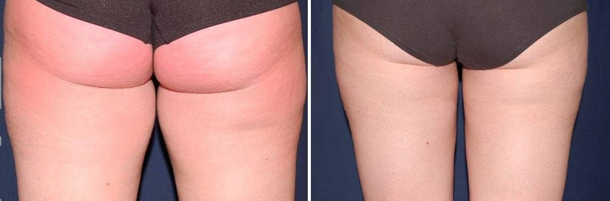 75 Liposuction pictures before and after