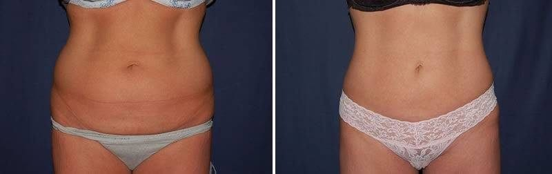 96 Liposuction Before and After Photo