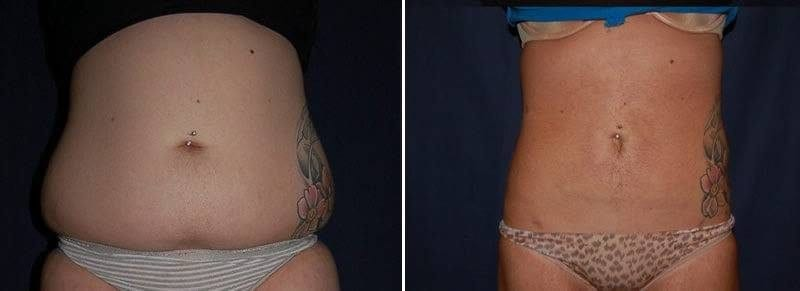 93 Liposuction Before and After Photo