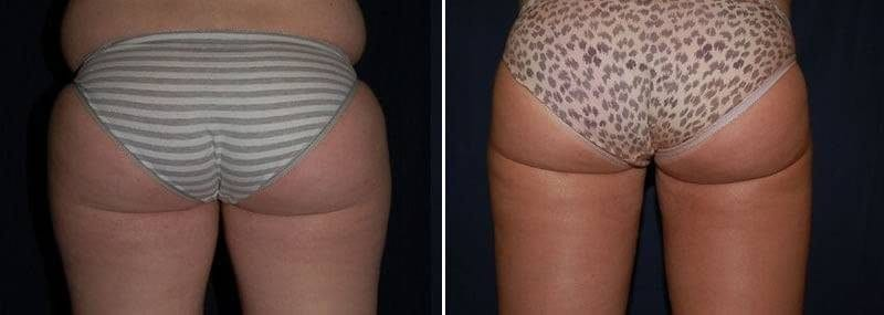91 Liposuction Before and After Photo