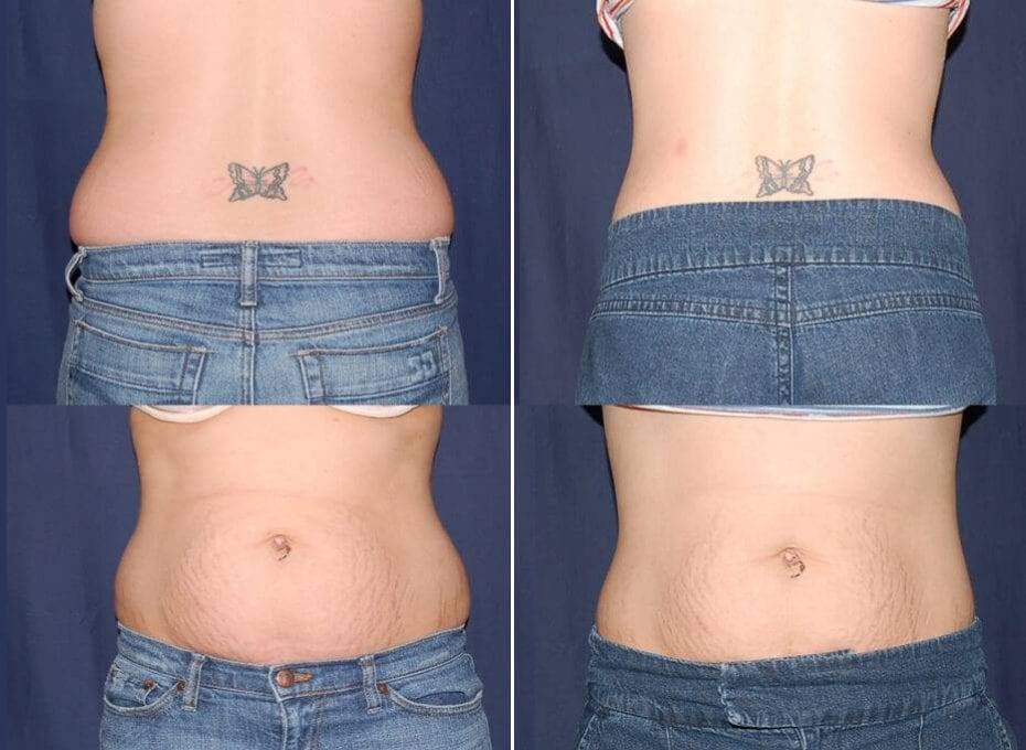 79 Liposuction Before and After Photo
