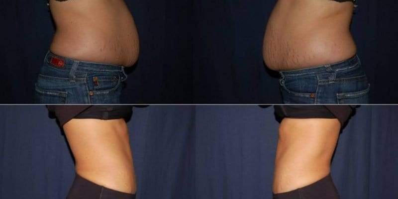343 Abdomen Liposuction before & after photo