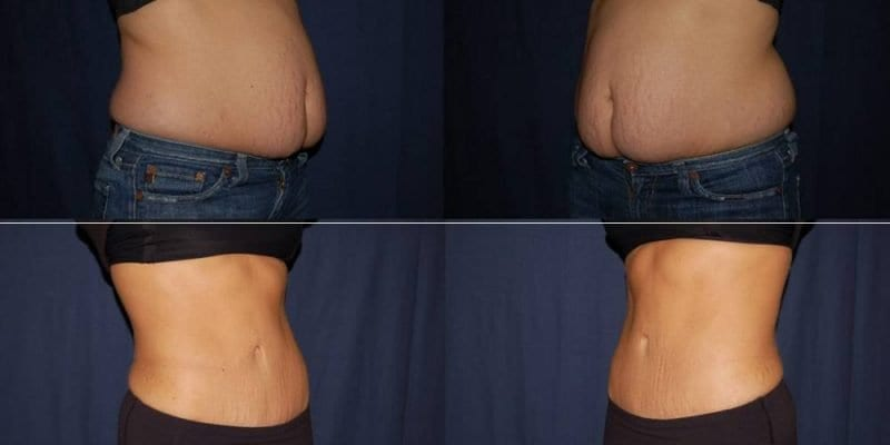 341 Abdomen Liposuction before & after photo