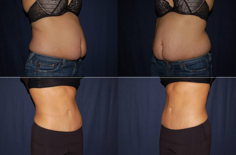 Abdomen Liposuction before & after photo