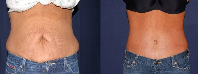 192 Abdominoplasty Before and After