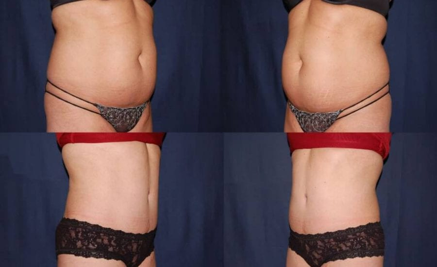 322 Abdominoplasty Before and After Photo