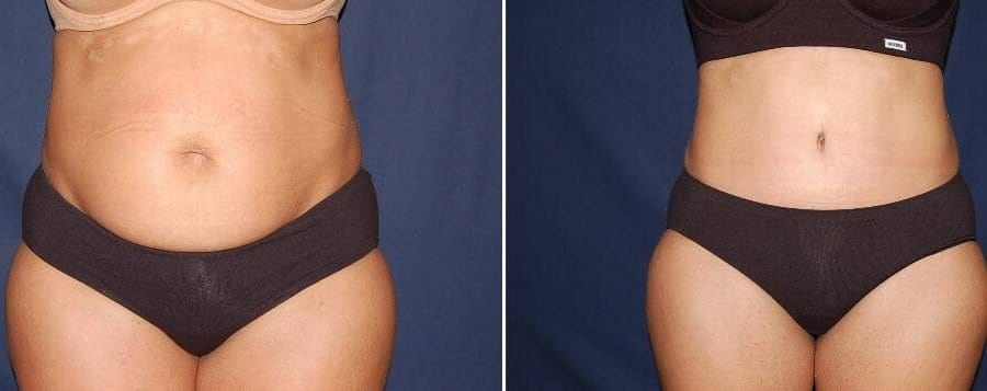 296 Abdominoplasty photo before and after