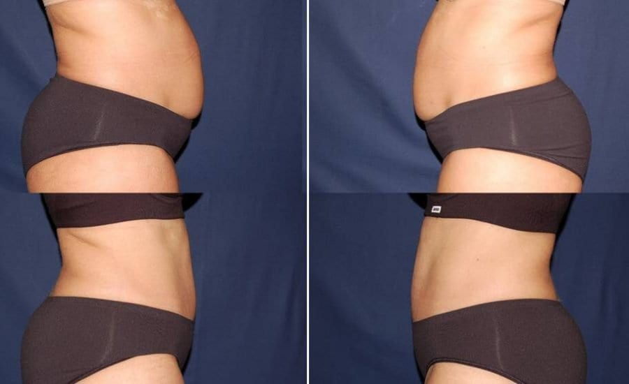 295 Abdominoplasty photo before and after