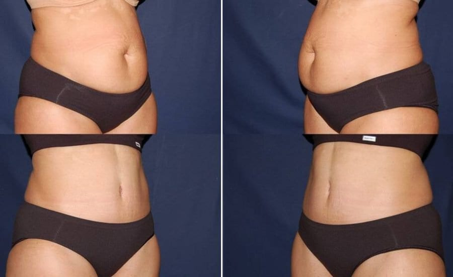 294 Abdominoplasty photo before and after