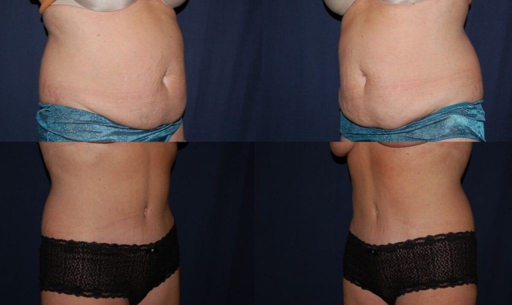 Liposucton photo results