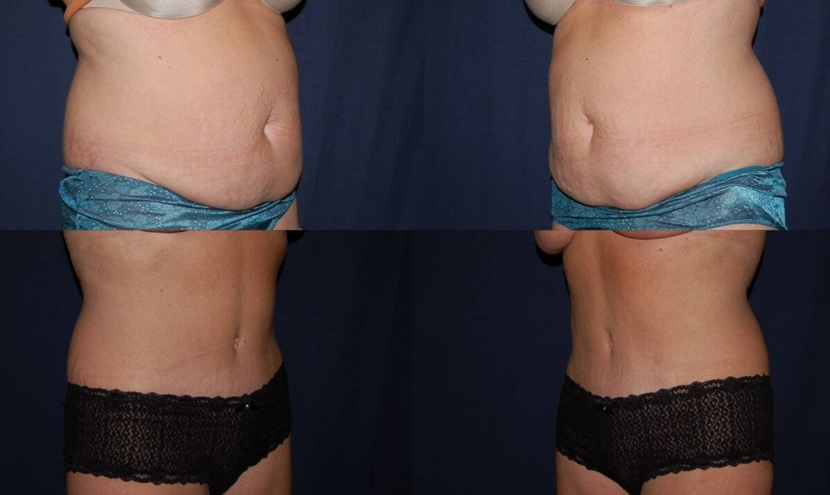 Liposuction Portland Dr Aaron Gorin Md Facs