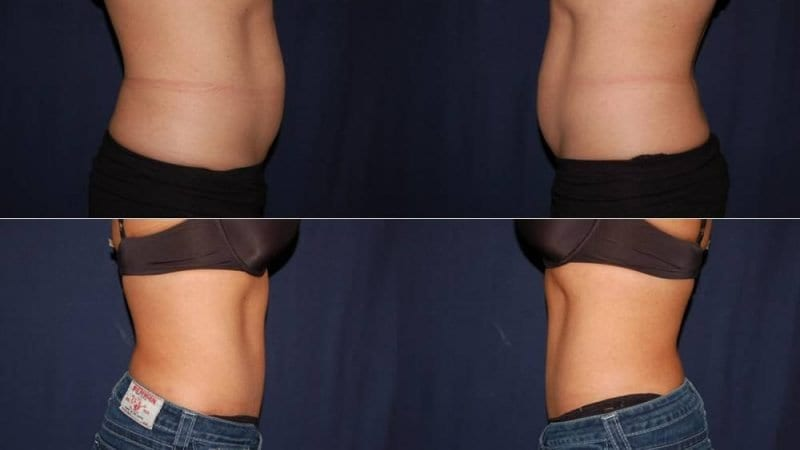 255 Tummy Tuck Before and After Photo