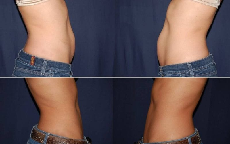251 Abdominplasty Before and After Photo