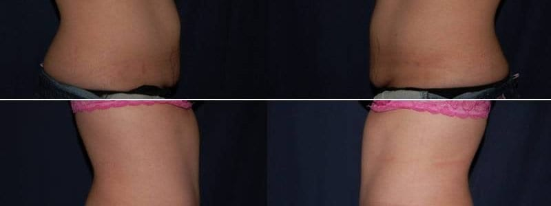 237 Tummy Tuck Before and After Photo