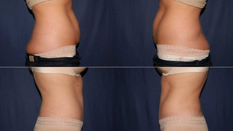 211 Tummy Tuck Before and Aafter