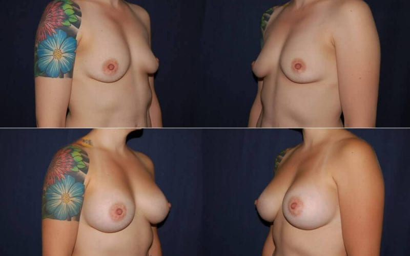 168 Breast Enlargement Before and After Photo
