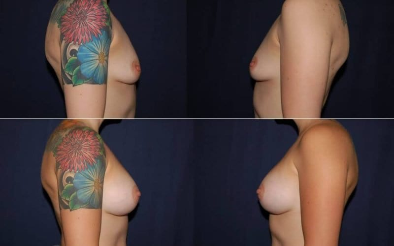 167 Breast Enlargement Before and After Photo