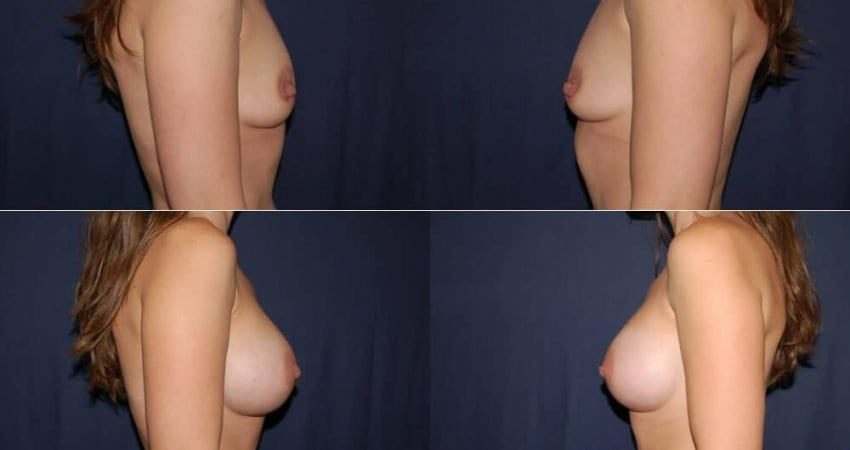 165 Breast Enlargement Before and After Photo