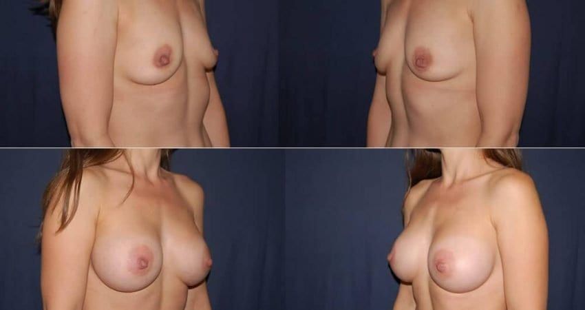 164 Breast Enlargement Before and After Photo