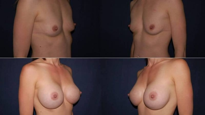 162 Breast Enlargement Before & After Photo