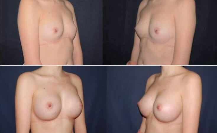 159 Breast Enlargement Before & After Photo
