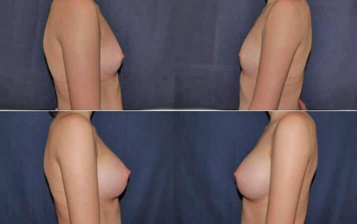156 Breast Enlargement Before & After Photo