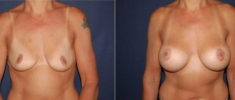 153 Breast Enlargement Before & After Photo