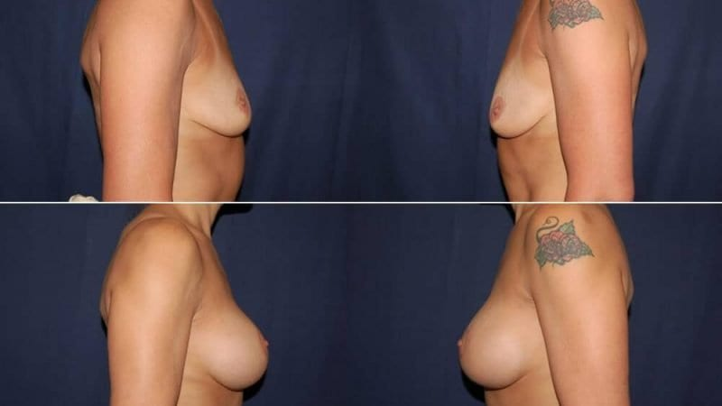 152 Breast Enlargement Before & After Photo
