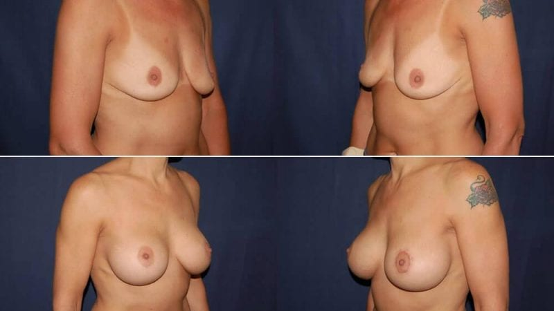 151 Breast Enlargement Before & After Photo
