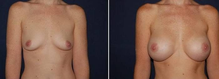 150 Breast Enlargement Before & After Photo