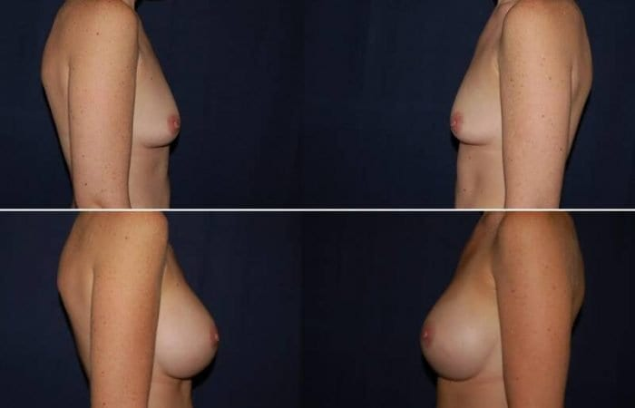 149 Breast Enlargement Before & After Photo