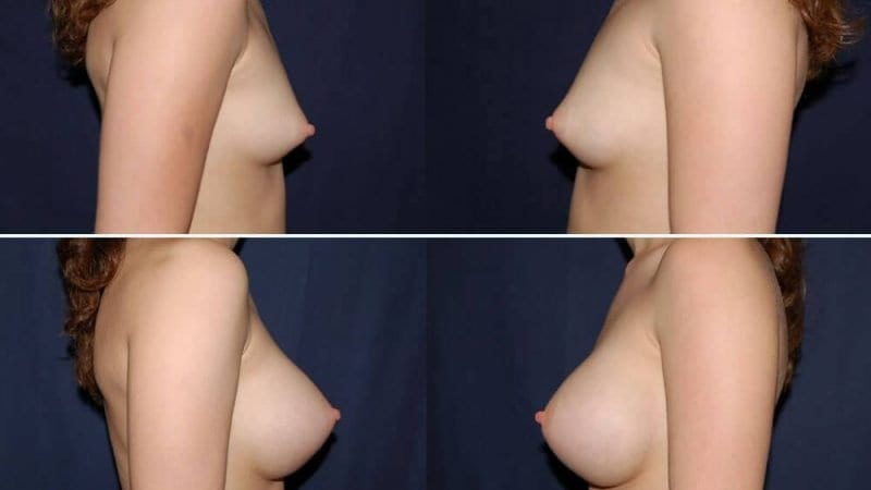 146 Breast Enlargement Before & After Photo