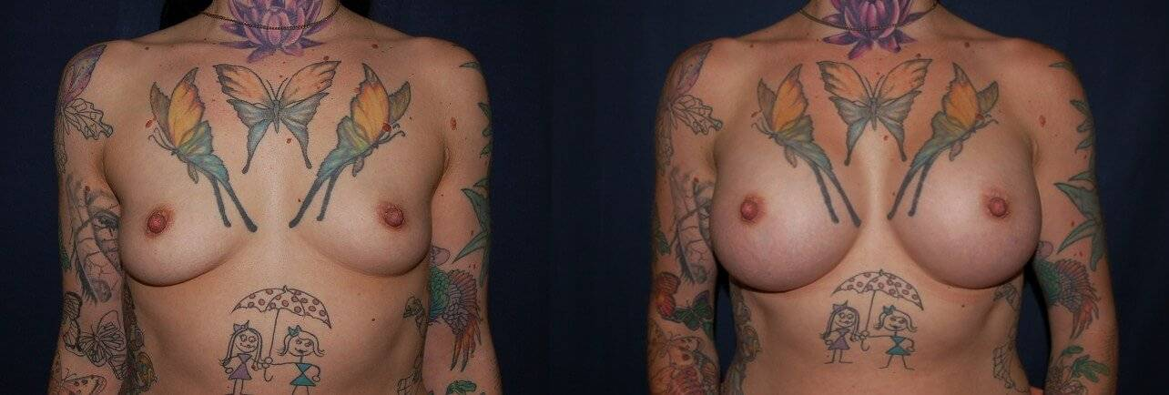 144 reast Enlargement Before & After Photo