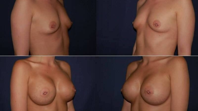 140 Breast Enlargement Before & After Photo