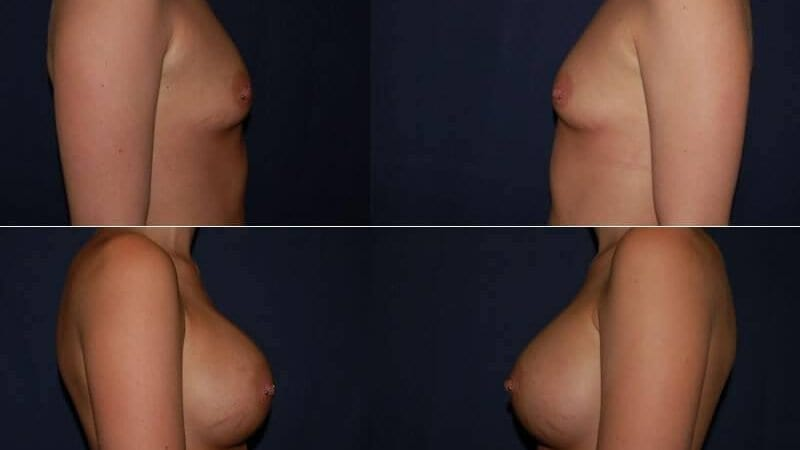 139 Breast Enlargement Before & After Photo