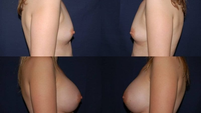 137 Breast Enlargement Before & After Photo