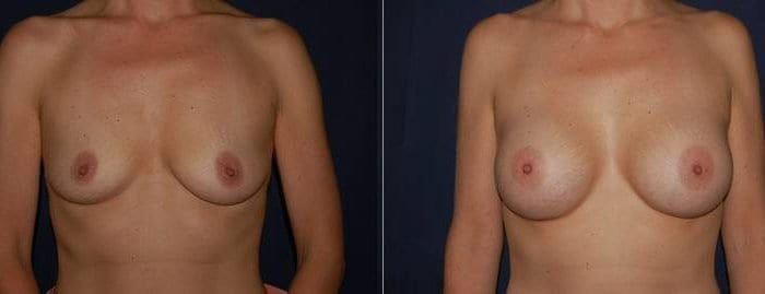 129 Breast Enlargement Before & After Photo