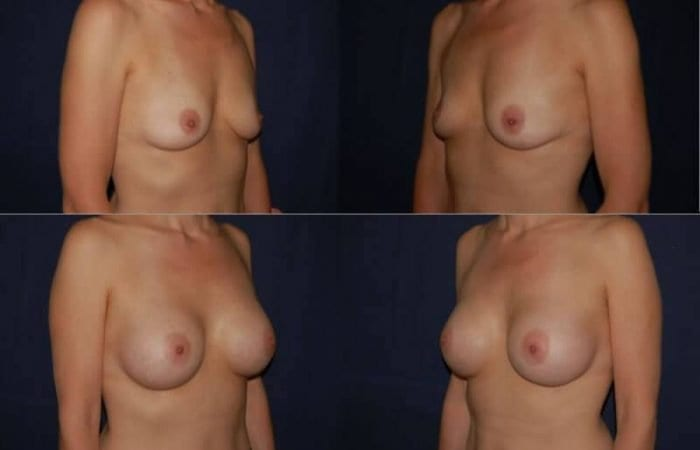 128 Breast Enlargement Before & After Photo