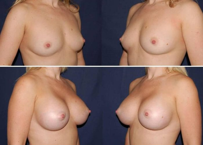 126 Breast Enlargement Before & After Photo