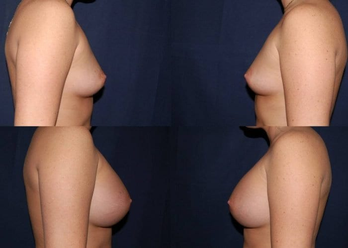 122 Breast Enlargement Before & After Photo