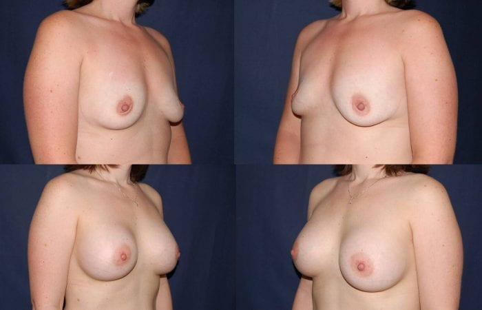 118 Breast Enlargement Before & After Photo