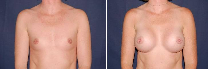 117 Breast Enlargement Before & After Photo