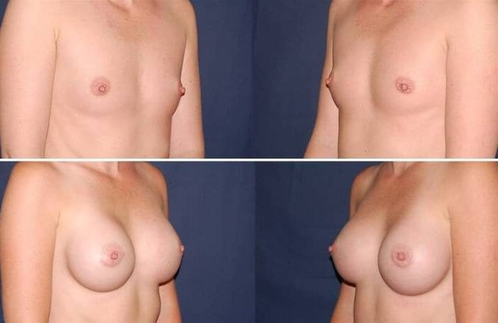 115 Breast Enlargement Before & After Photo