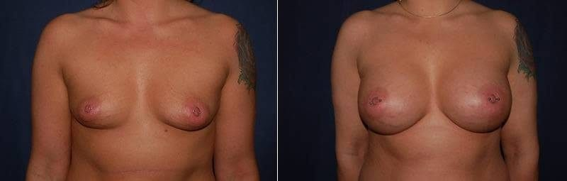 114 Breast Enlargement Before & After Photo