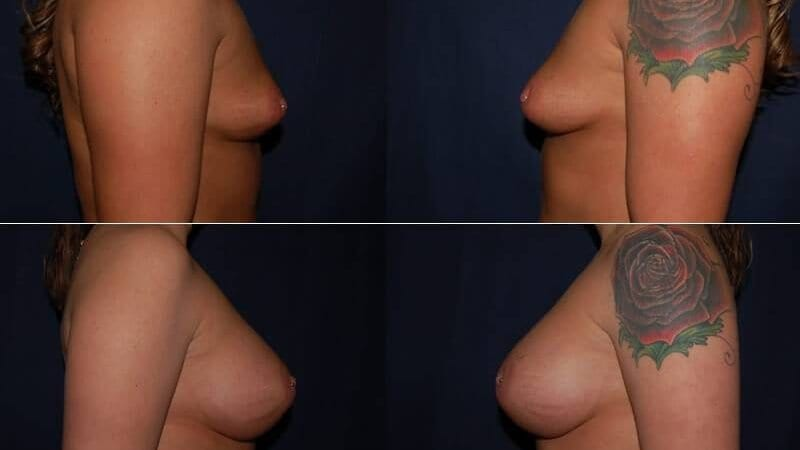 113 Breast Enlargement Before & After Photo